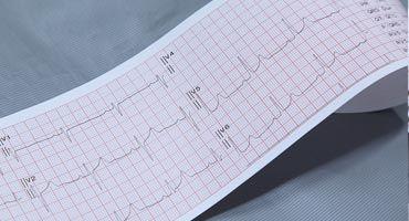 Resultado de electrocardiograma