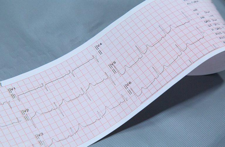 Resultado electro cardiograma